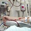 dialysis-r-dialysis-region-small